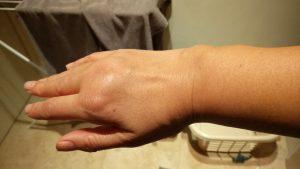 右手の腫れ